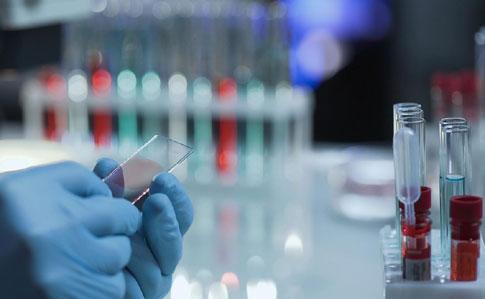 9 квітня на Львівщині зафіксовано нові смерті від коронавірусу та звернулось 42 людини з підозрою