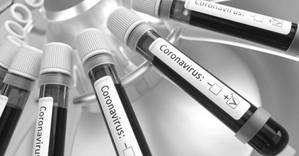 Учора на Львівщині помер перший пацієнт, у якого було зафіксовано коронавірусну інфекцію.