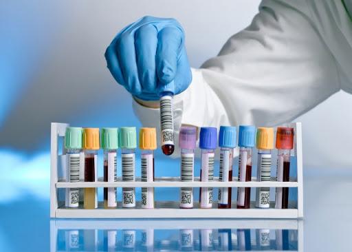 В Україні зафіксовано 942 випадки коронавірусної хвороби COVID-19, на Львівщині вже 13