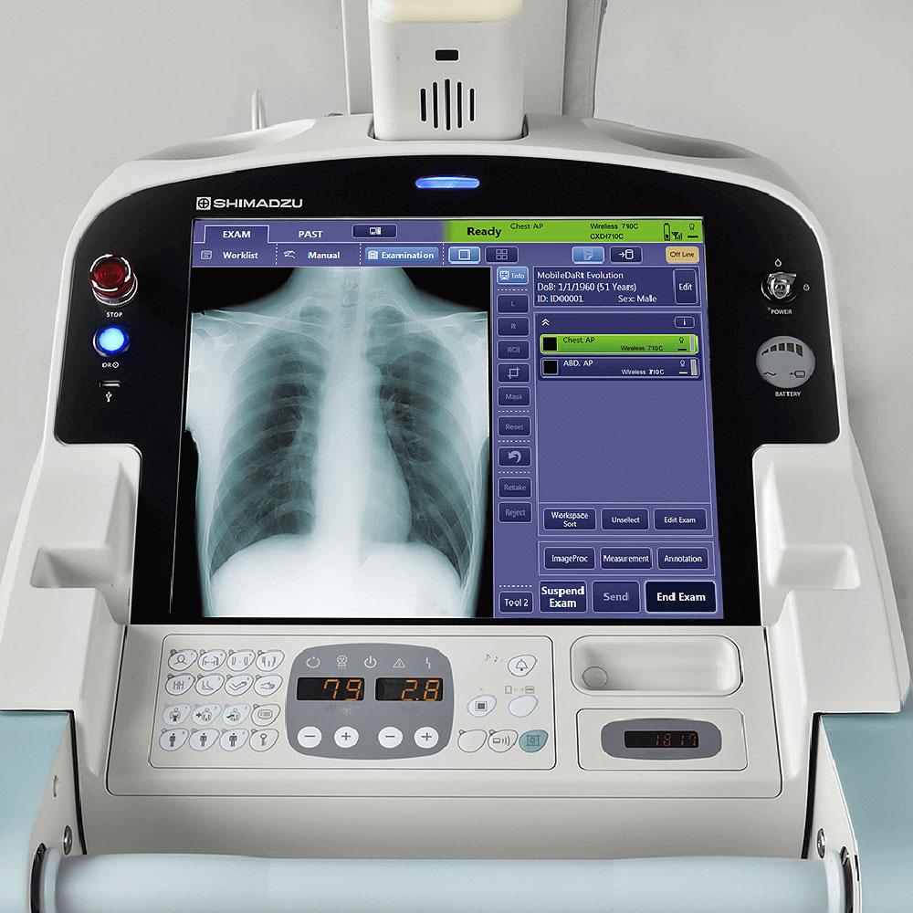 Червоноград: для лікарні придбають пересувний палатний цифровий рентген-апарат та добудують школу №6