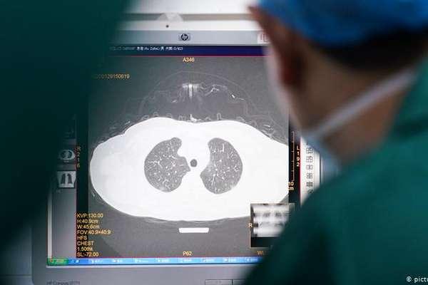 Захворюваність в Сокалі знижується, а в Україні росте – за добу майже 12 000 нових випадків COVID-19